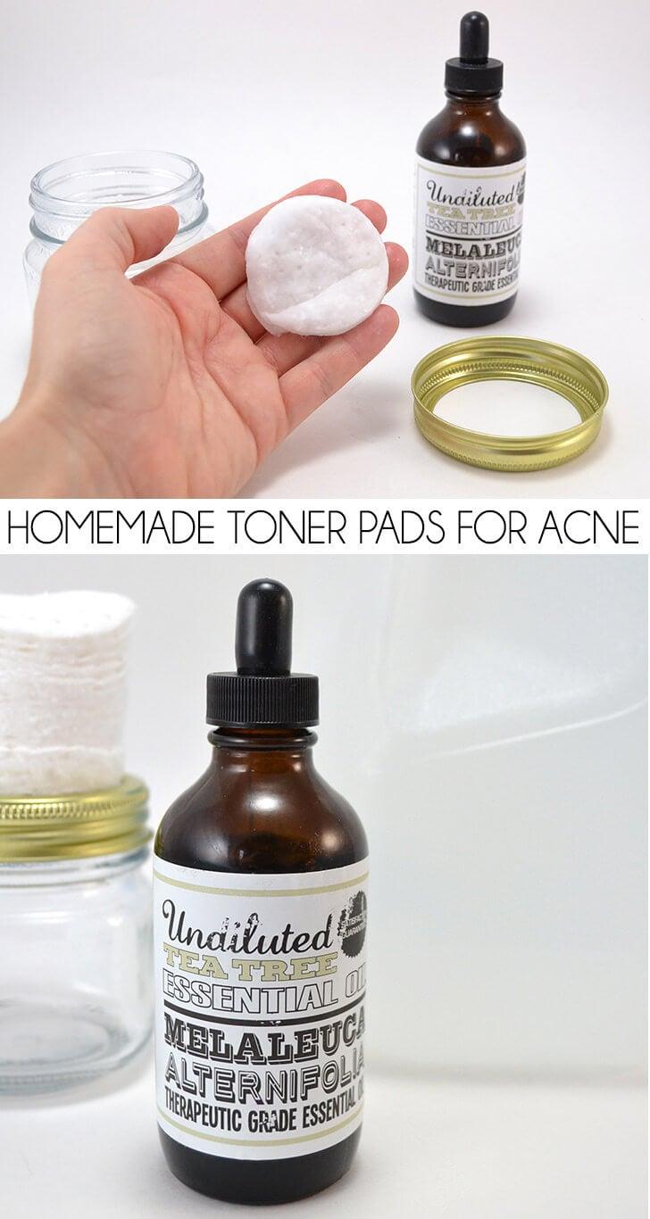 Homemade Toner Pads for Acne